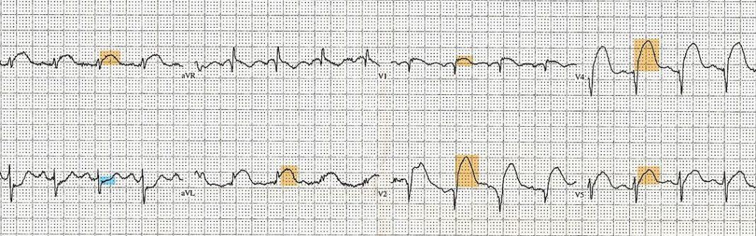 Cum să supraviețuiești unui infarct