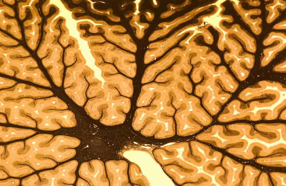 22 de lucruri fascinante despre creier